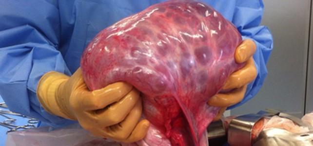 Le cas de la semaine : tumeur bénigne de l'ovaire droit